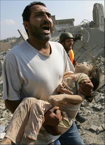 child_injured_in_israeli_attack_on_the_gaza_strip__file_2007